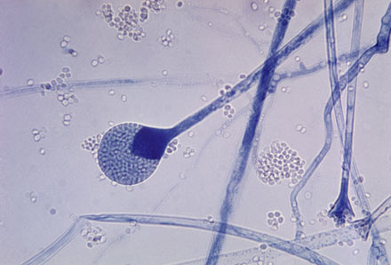 A microscopic view of Mucor mold spores.