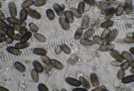 A microscopic view of stachybotrys mold spores.