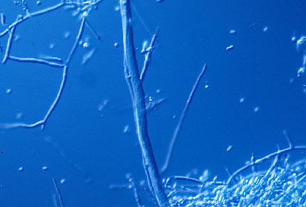 A microscopic view of trichoderma mold spores.