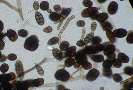 A microscopic view of Ulocladium mold spores.